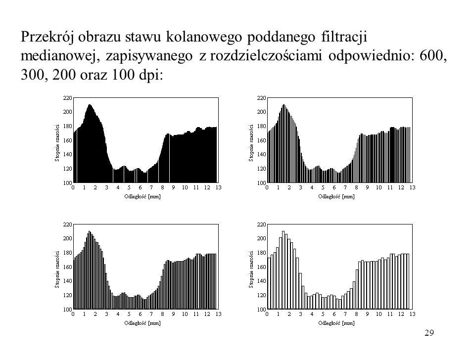 Przekrój obrazu stawu kolanowego poddanego filtracji medianowej, zapisywanego z rozdzielczościami odpowiednio: 600, 300, 200 oraz 100 dpi: