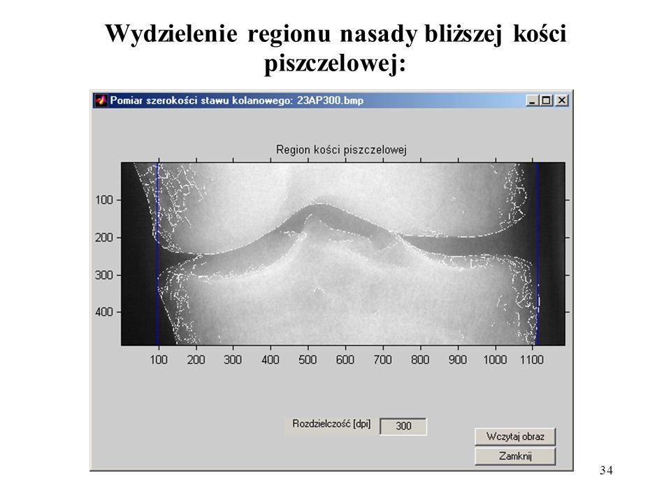 Wydzielenie regionu nasady bliższej kości piszczelowej: