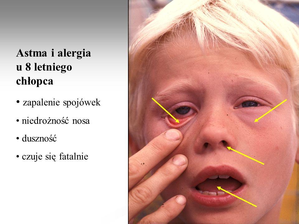 Astma i alergia u 8 letniego chłopca