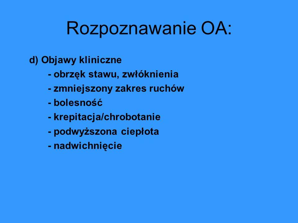 Rozpoznawanie OA: d) Objawy kliniczne - obrzęk stawu, zwłóknienia