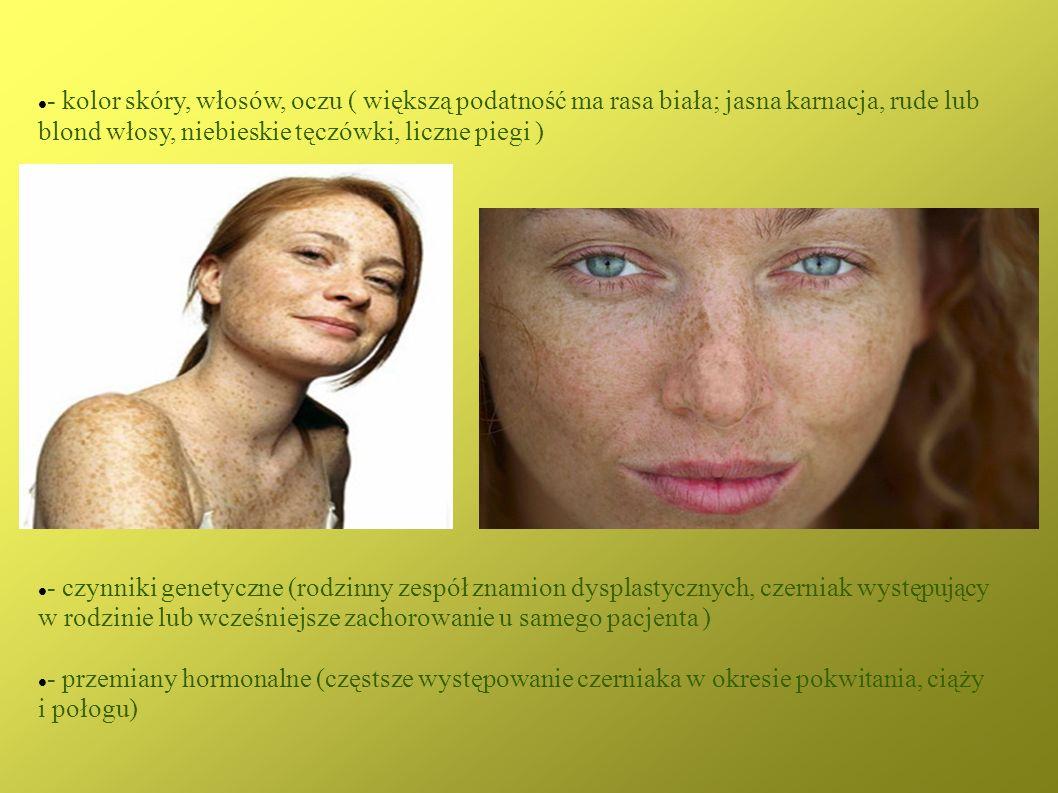 - kolor skóry, włosów, oczu ( większą podatność ma rasa biała; jasna karnacja, rude lub blond włosy, niebieskie tęczówki, liczne piegi )