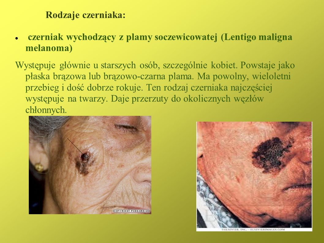 Rodzaje czerniaka:czerniak wychodzący z plamy soczewicowatej (Lentigo maligna melanoma)