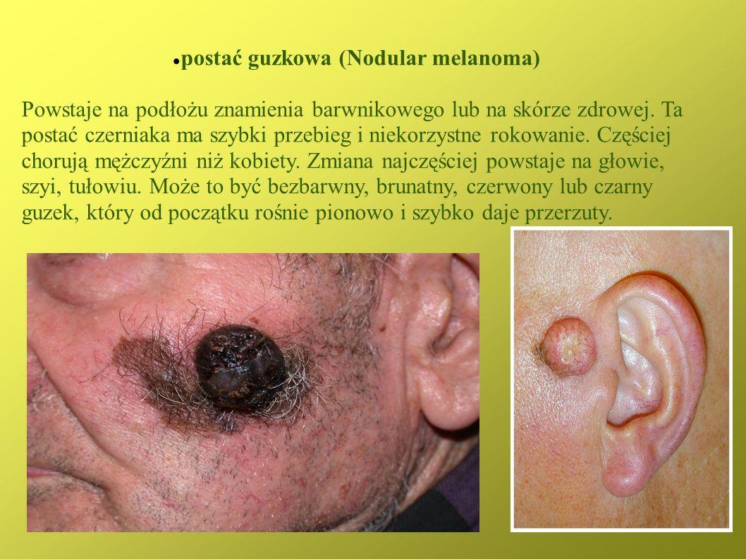 postać guzkowa (Nodular melanoma)