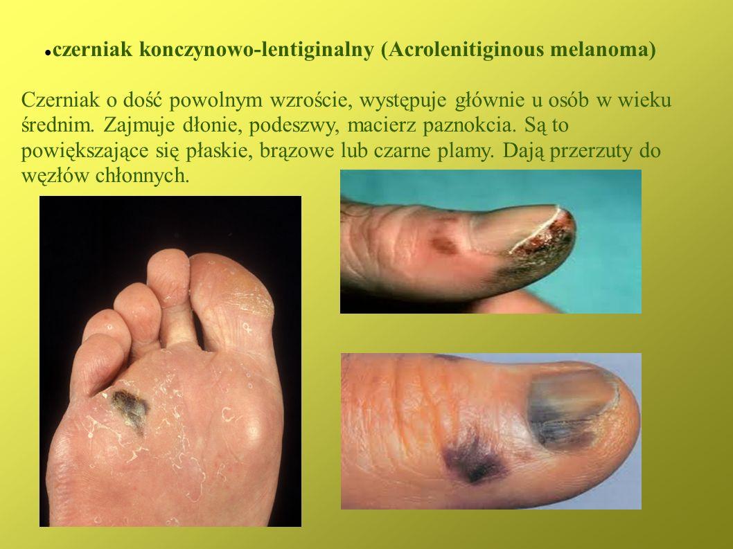 czerniak konczynowo-lentiginalny (Acrolenitiginous melanoma)