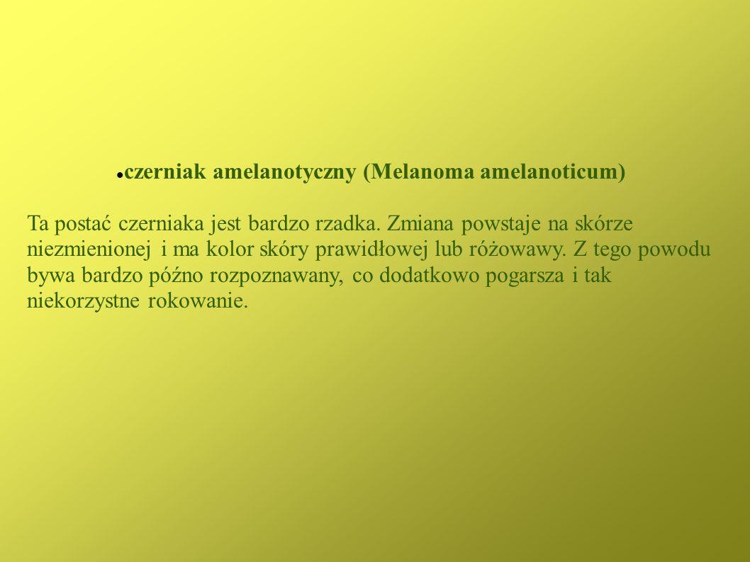czerniak amelanotyczny (Melanoma amelanoticum)