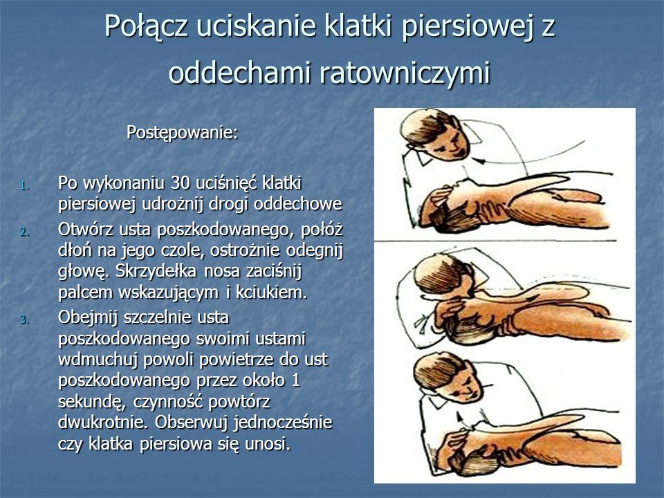 Połącz uciskanie klatki piersiowej z oddechami ratowniczymi