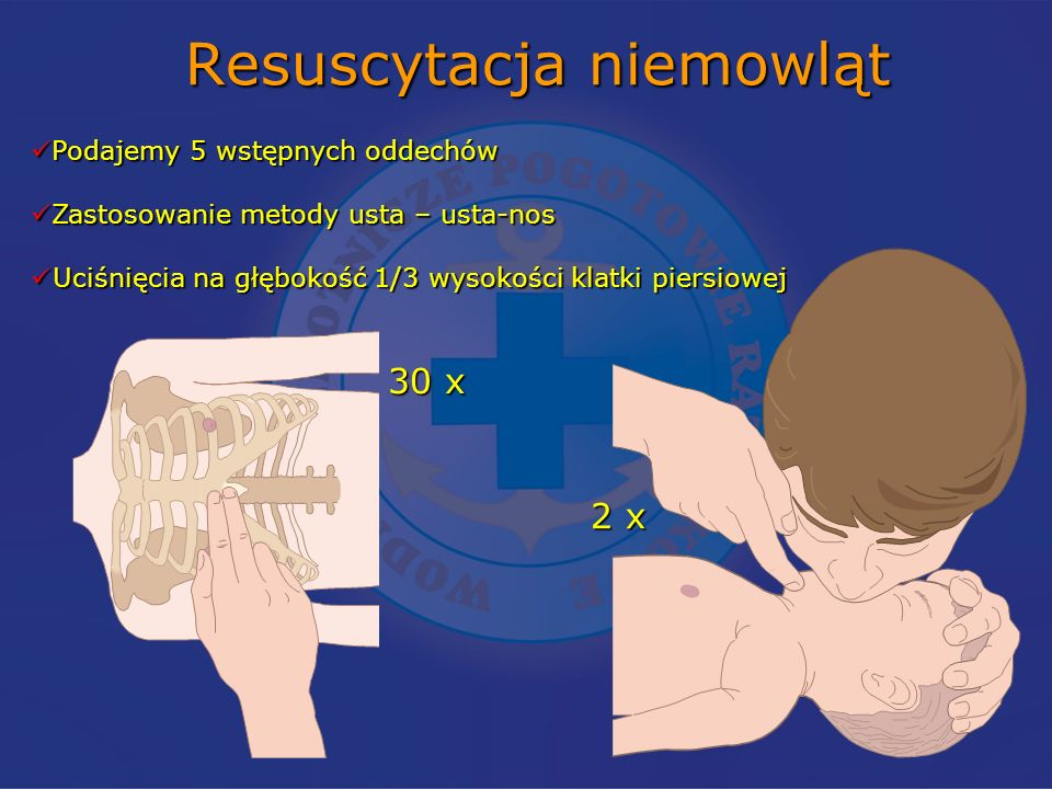 Resuscytacja niemowląt