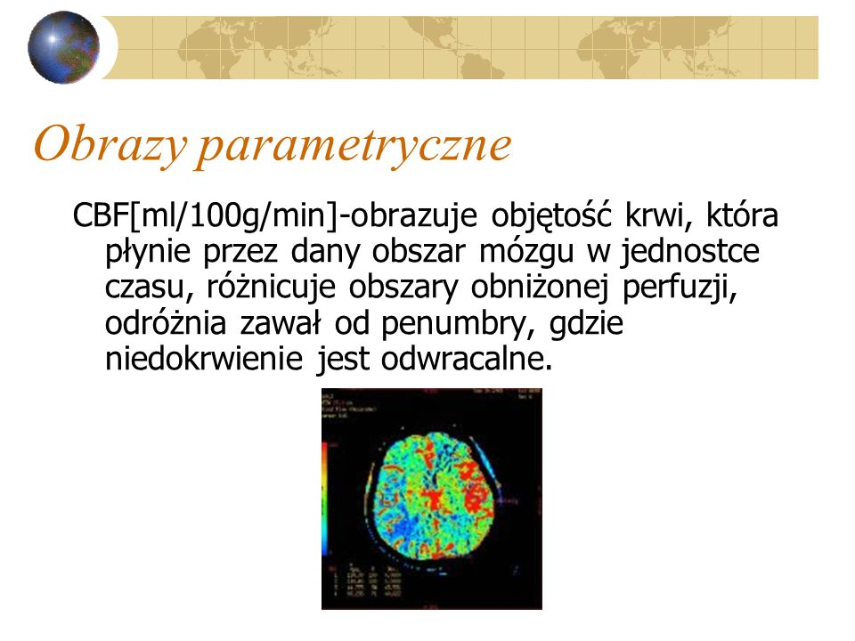 Obrazy parametryczne