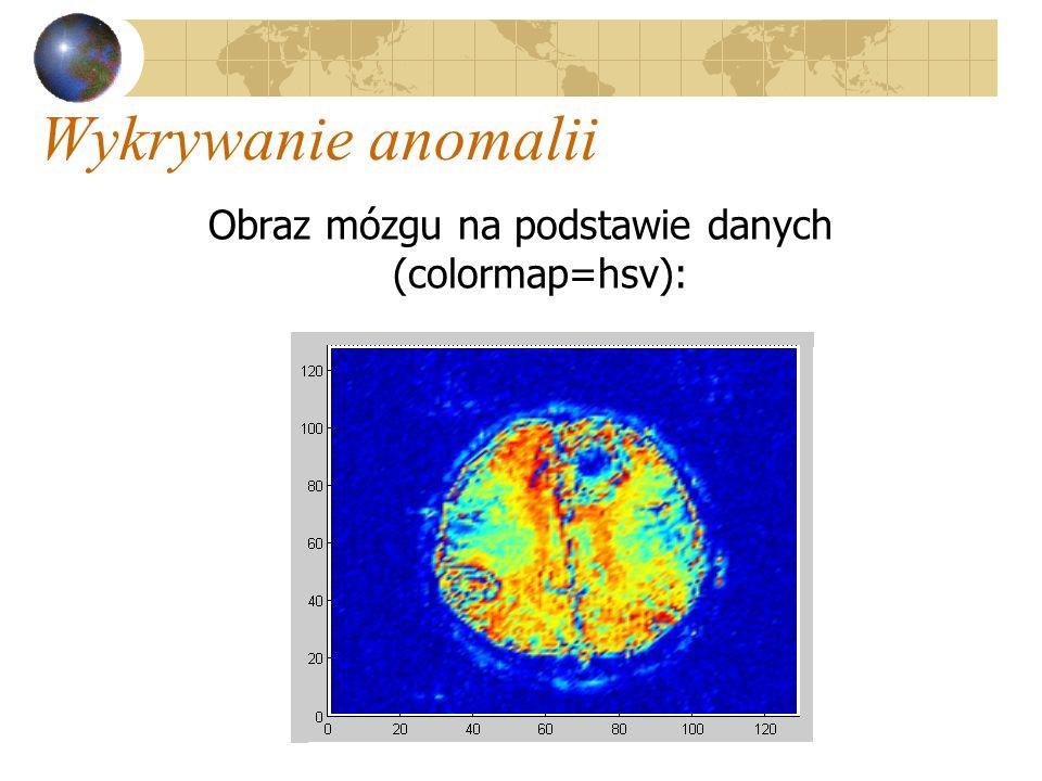 Obraz mózgu na podstawie danych (colormap=hsv):