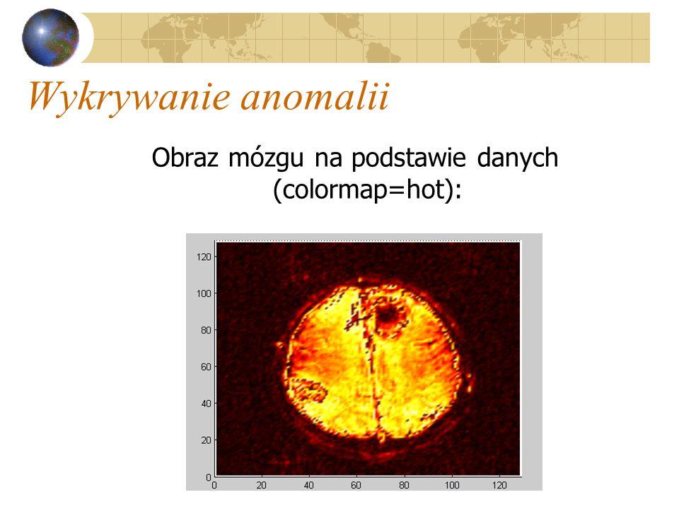 Obraz mózgu na podstawie danych (colormap=hot):