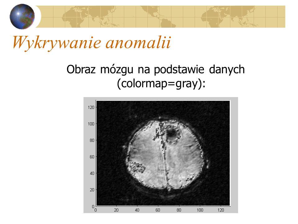 Obraz mózgu na podstawie danych (colormap=gray):