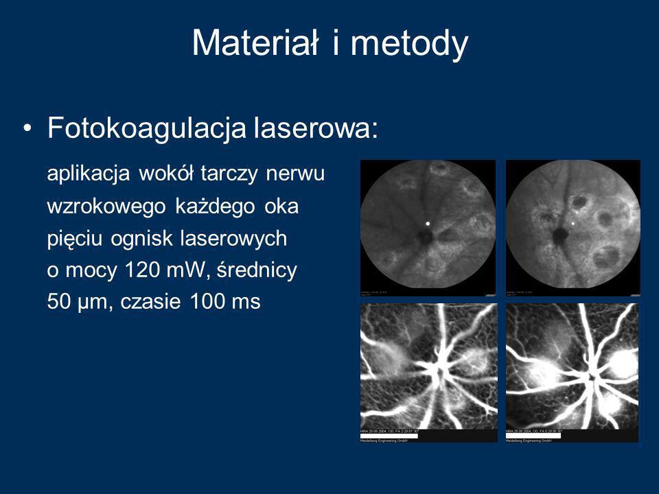 Materiał i metody Fotokoagulacja laserowa: