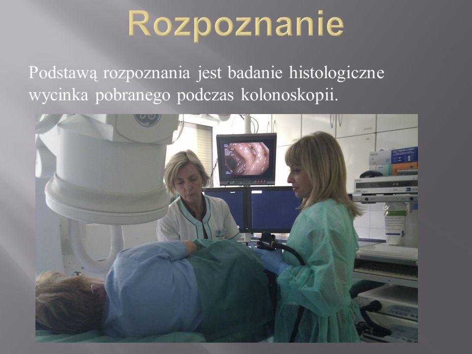 Rozpoznanie Podstawą rozpoznania jest badanie histologiczne wycinka pobranego podczas kolonoskopii.