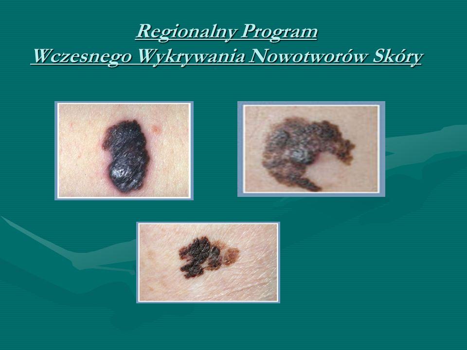 Regionalny Program Wczesnego Wykrywania Nowotworów Skóry