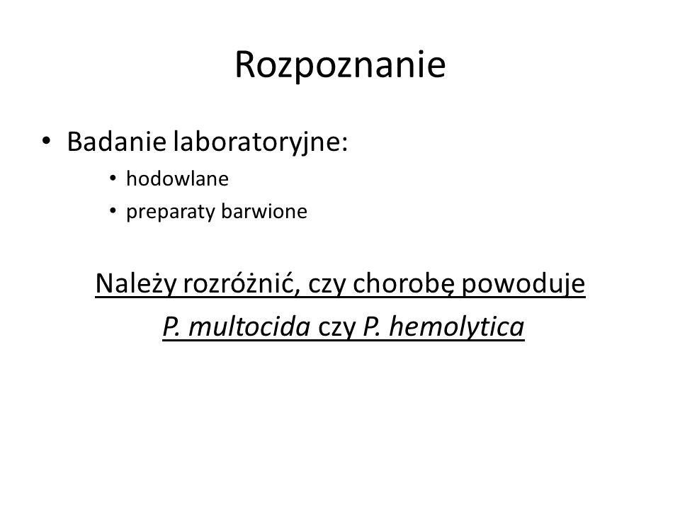 Rozpoznanie Badanie laboratoryjne: