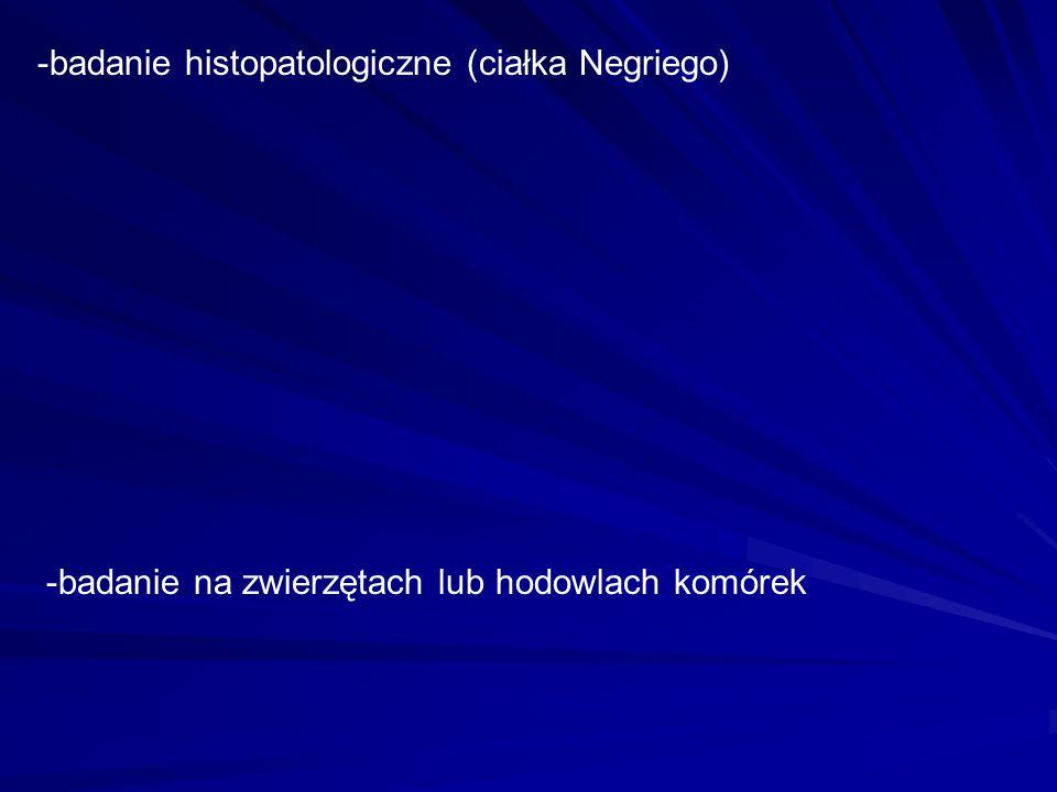 -badanie histopatologiczne (ciałka Negriego)