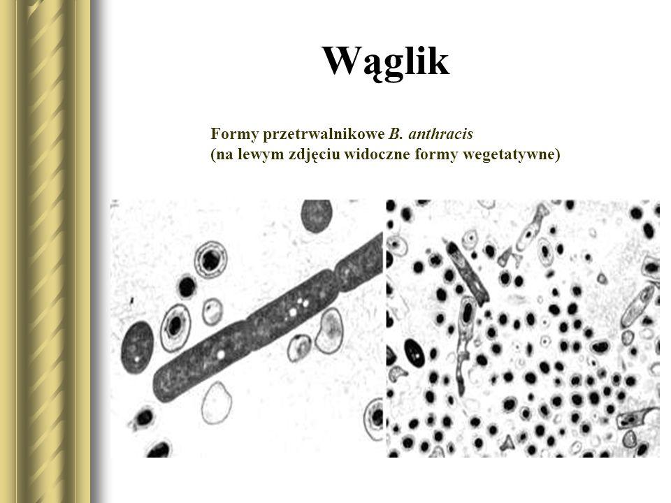Wąglik Formy przetrwalnikowe B. anthracis (na lewym zdjęciu widoczne formy wegetatywne)