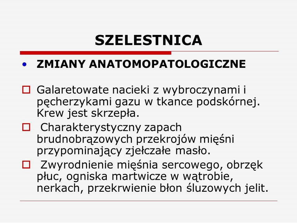 SZELESTNICA ZMIANY ANATOMOPATOLOGICZNE