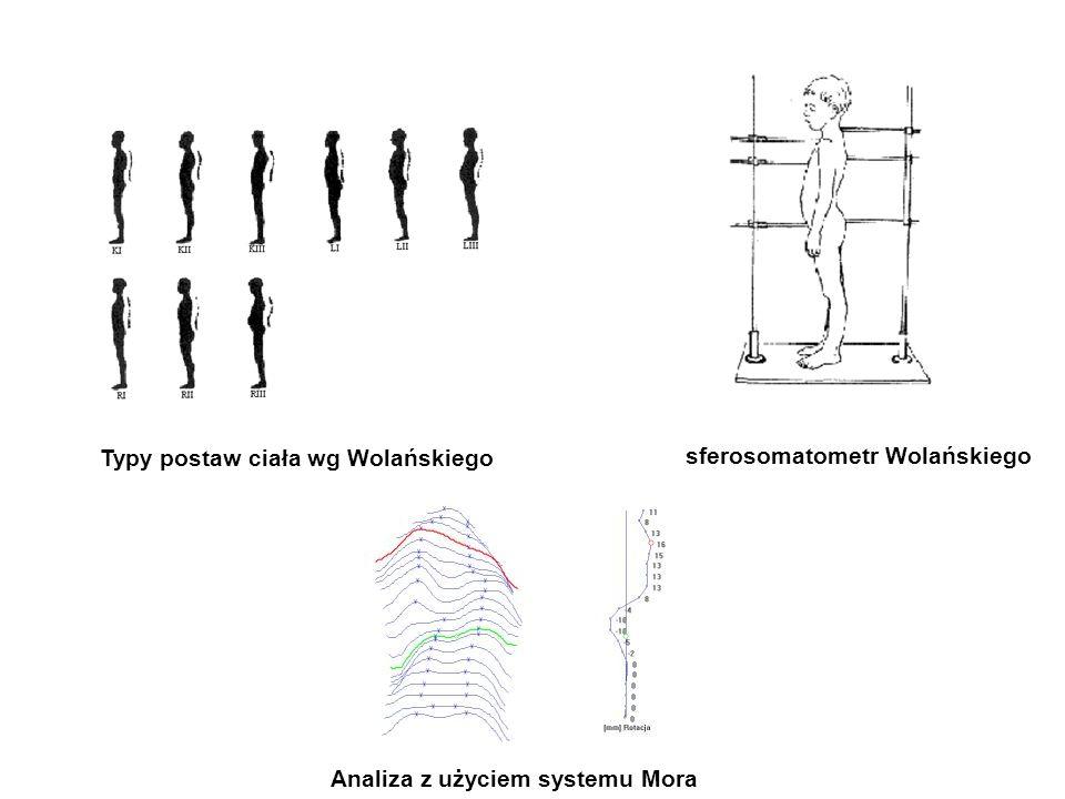 Typy postaw ciała wg Wolańskiego
