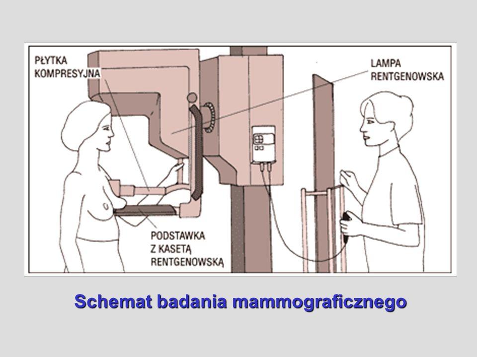 Schemat badania mammograficznego
