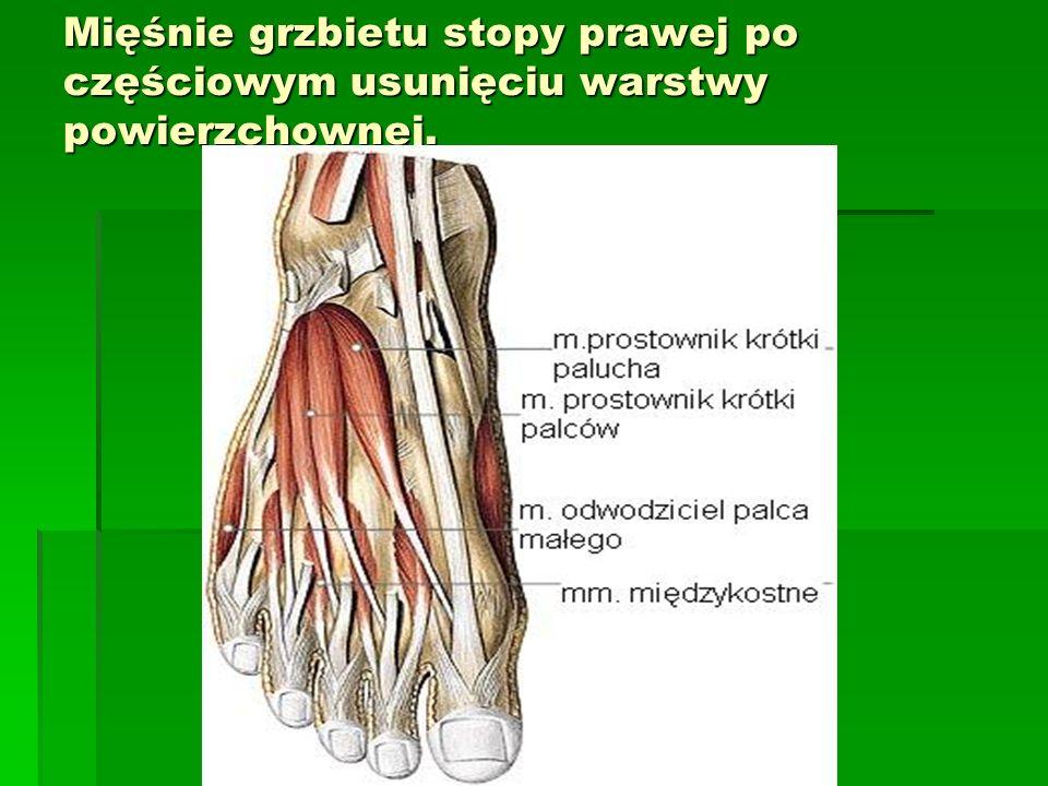 Mięśnie grzbietu stopy prawej po częściowym usunięciu warstwy powierzchownej.