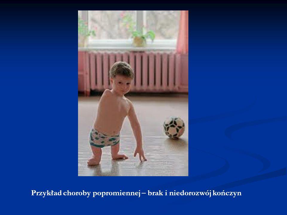 Przykład choroby popromiennej – brak i niedorozwój kończyn