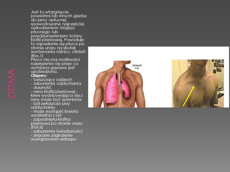 Odma Jest to wtargnięcie powietrza lub innych gazów do jamy opłucnej spowodowane najczęściej.
