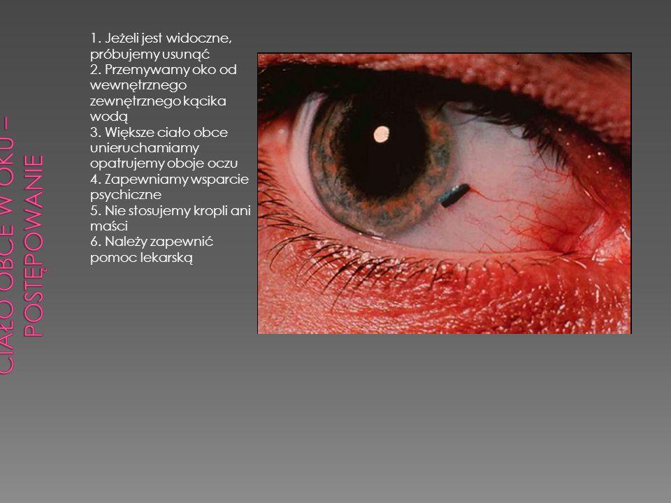 Ciało obce w oku – postępowanie