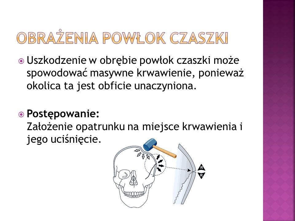 Obrażenia powłok czaszki