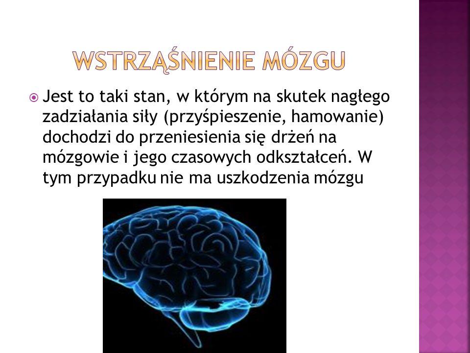 Wstrząśnienie mózgu