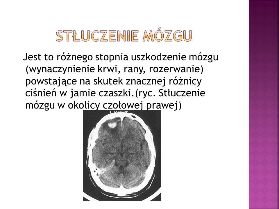 Stłuczenie mózgu