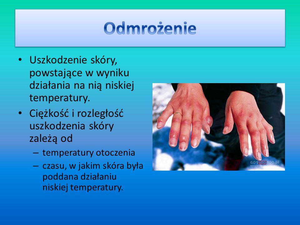 Odmrożenie Uszkodzenie skóry, powstające w wyniku działania na nią niskiej temperatury. Ciężkość i rozległość uszkodzenia skóry zależą od.