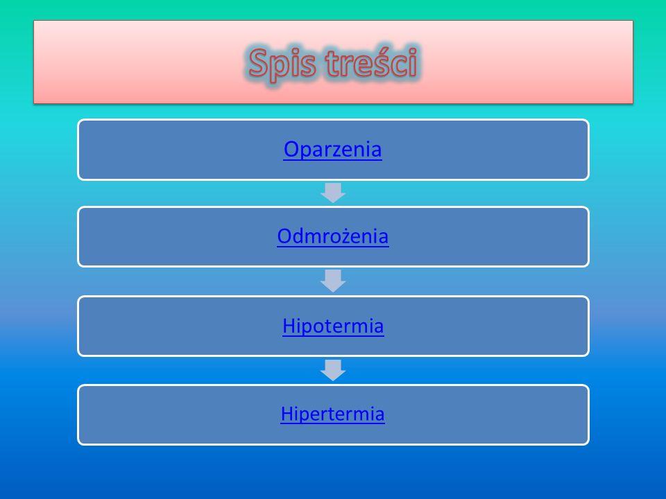 Spis treści Oparzenia Odmrożenia Hipotermia Hipertermia