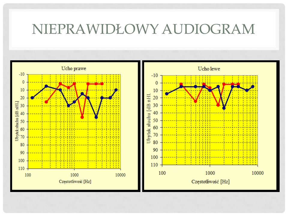 Nieprawidłowy audiogram