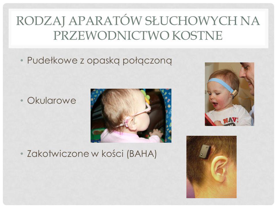 Rodzaj aparatów słuchowych na przewodnictwo kostne
