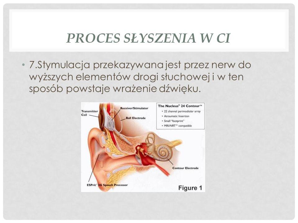 Proces słyszenia w CI7.Stymulacja przekazywana jest przez nerw do wyższych elementów drogi słuchowej i w ten sposób powstaje wrażenie dźwięku.