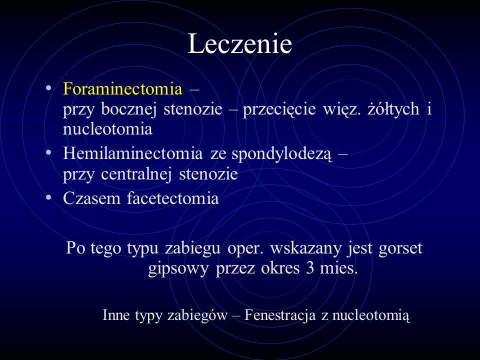 Inne typy zabiegów – Fenestracja z nucleotomią