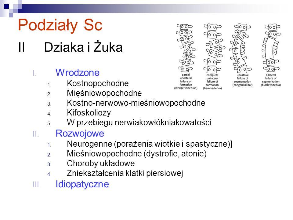 Podziały Sc II Dziaka i Żuka Wrodzone Rozwojowe Idiopatyczne
