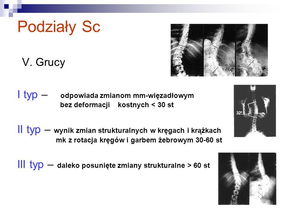 Podziały Sc V. Grucy. I typ – odpowiada zmianom mm-więzadłowym bez deformacji kostnych < 30 st.