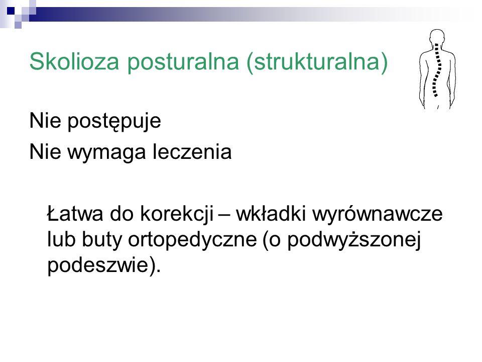 Skolioza posturalna (strukturalna)