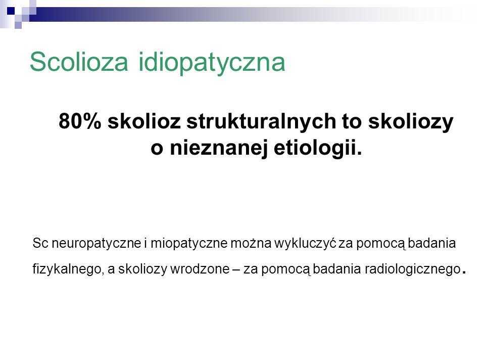 Scolioza idiopatyczna