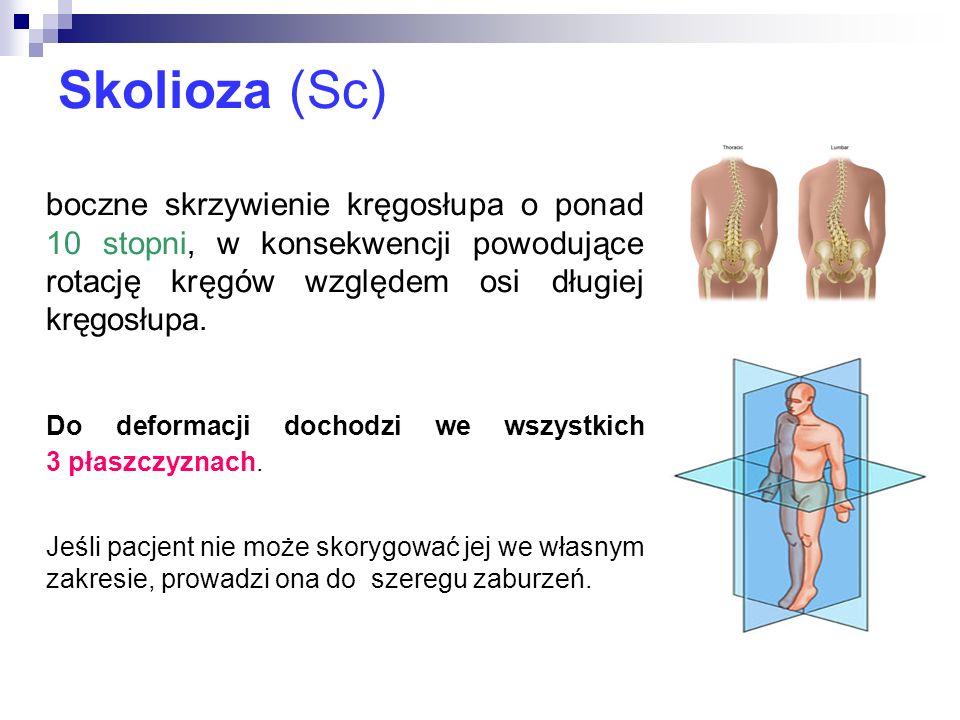 Skolioza (Sc) Do deformacji dochodzi we wszystkich 3 płaszczyznach.