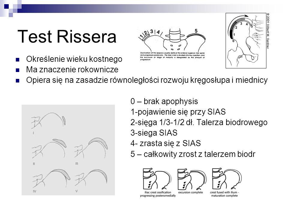 Test Rissera Określenie wieku kostnego Ma znaczenie rokownicze