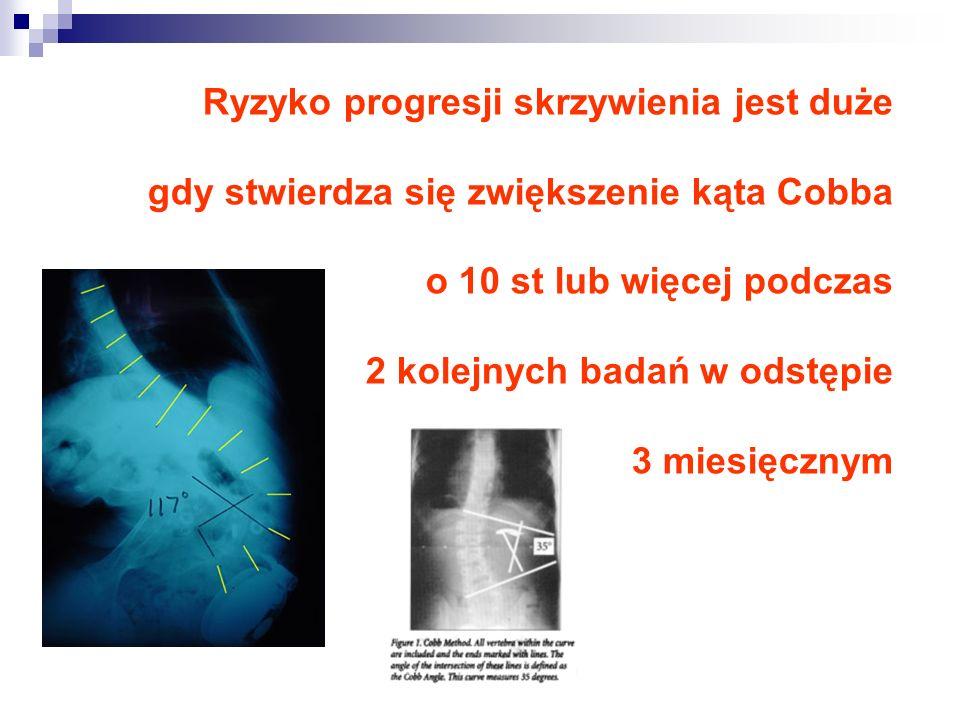 Ryzyko progresji skrzywienia jest duże gdy stwierdza się zwiększenie kąta Cobba o 10 st lub więcej podczas 2 kolejnych badań w odstępie 3 miesięcznym