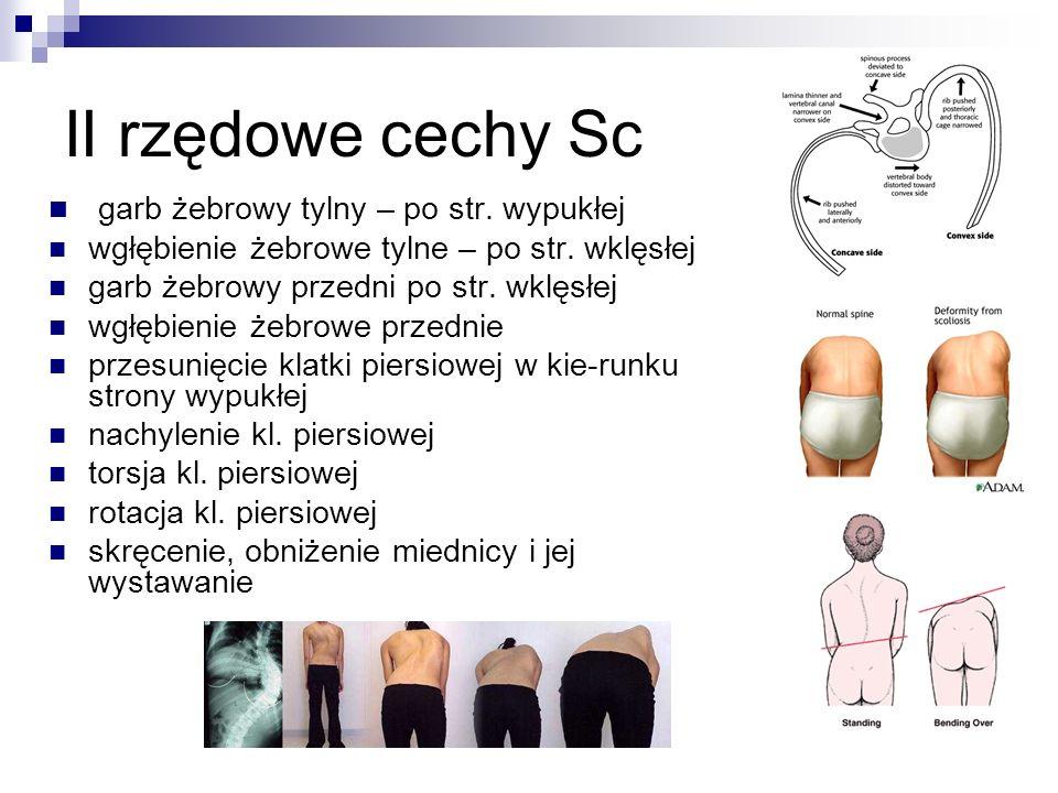 II rzędowe cechy Sc garb żebrowy tylny – po str. wypukłej