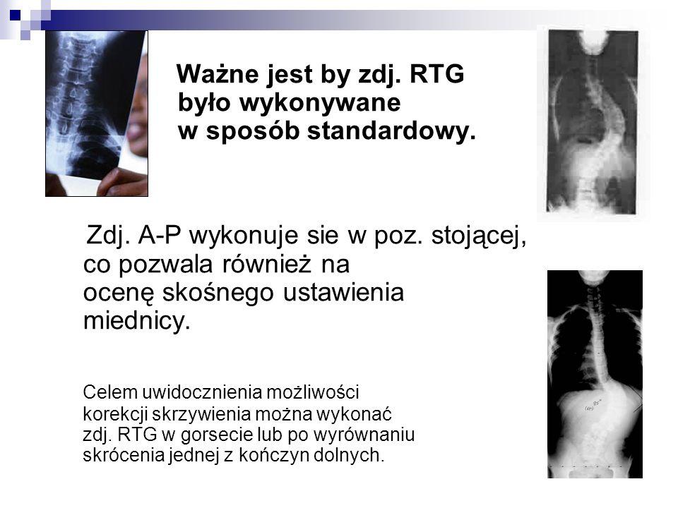 Ważne jest by zdj. RTG było wykonywane w sposób standardowy.