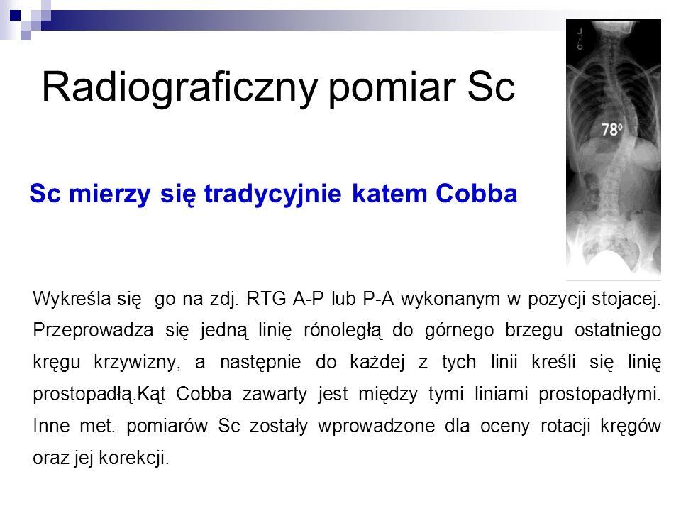 Radiograficzny pomiar Sc
