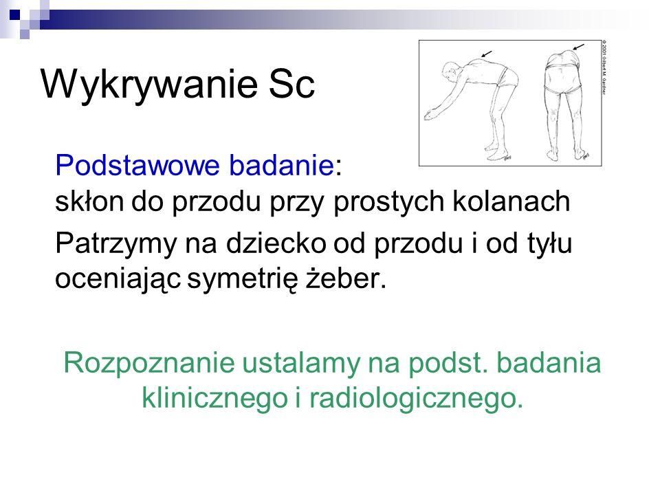 Rozpoznanie ustalamy na podst. badania klinicznego i radiologicznego.