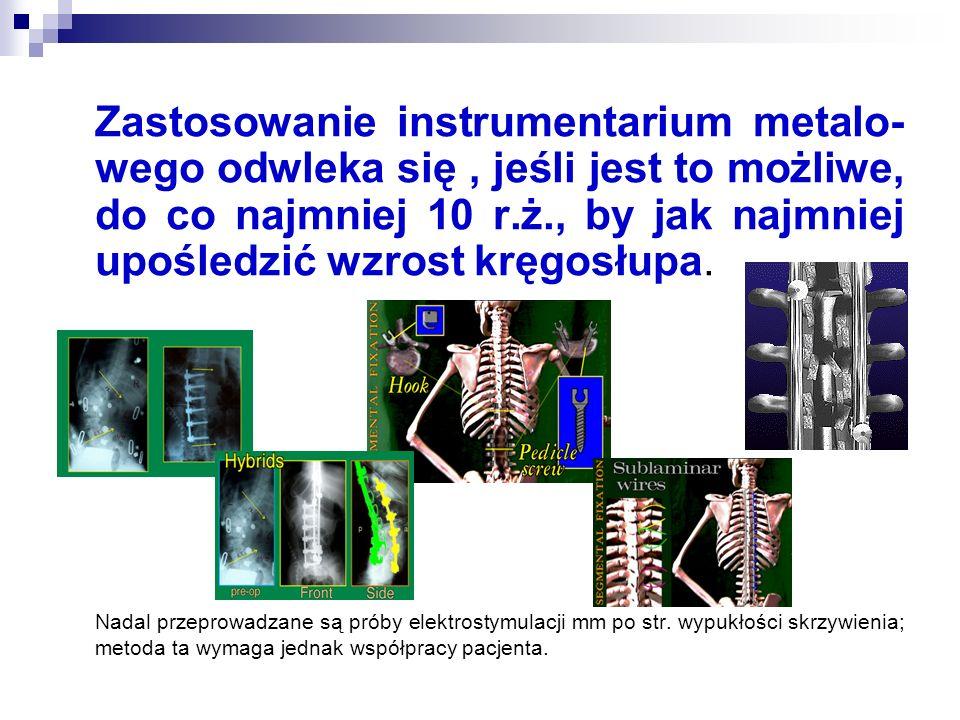 Zastosowanie instrumentarium metalo-wego odwleka się , jeśli jest to możliwe, do co najmniej 10 r.ż., by jak najmniej upośledzić wzrost kręgosłupa.