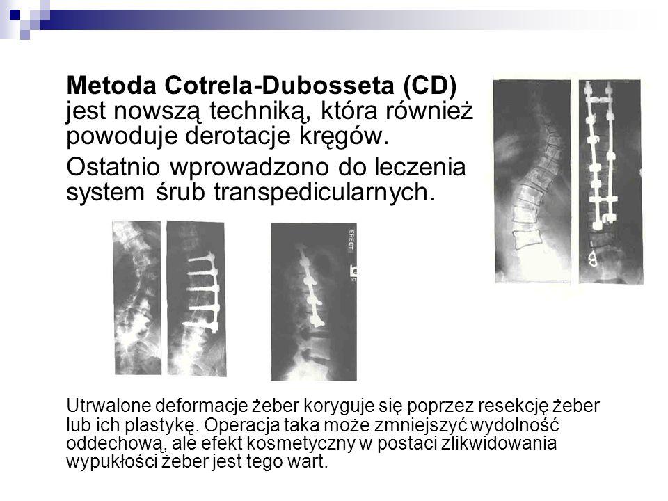 Metoda Cotrela-Dubosseta (CD) jest nowszą techniką, która również powoduje derotacje kręgów.